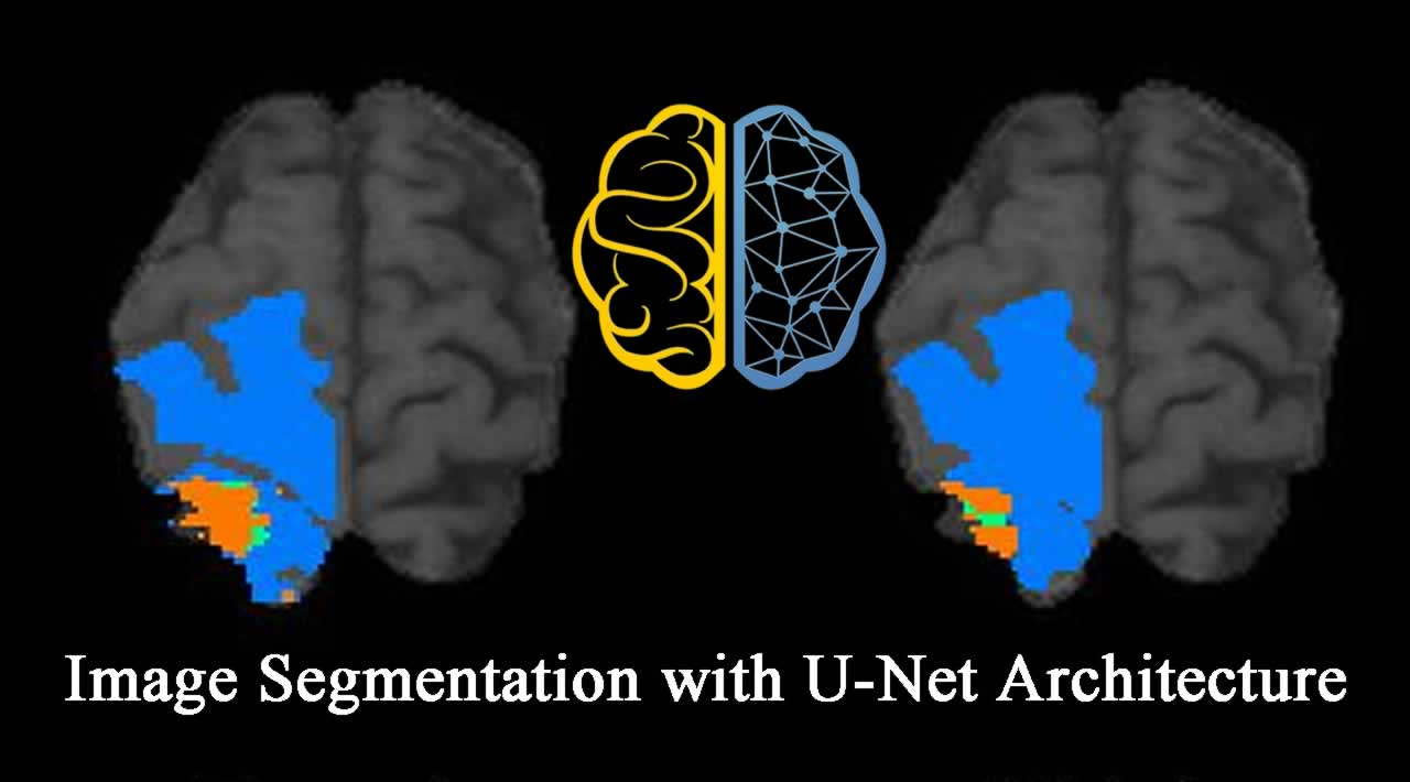 Deep Learning for Image Segmentation with U-Net Architecture